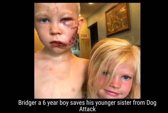 Bridger a 6 year boy saves his younger sister from Dog Attack